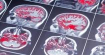 Как дыхание успокаивает мозг и другие научные преимущества контролируемого дыхания